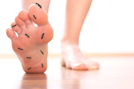 foot pain: Foot stepping ant chicle diabetes leg Stock Photo