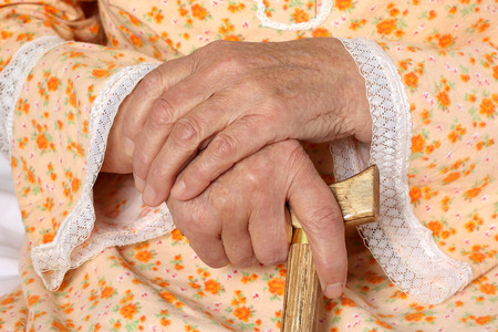 elderly patient: Old hands Stock Photo