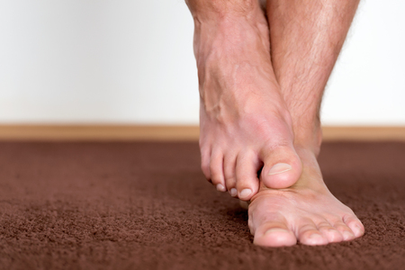 rash: Itchy pair of feet on brown carpet. Stock Photo