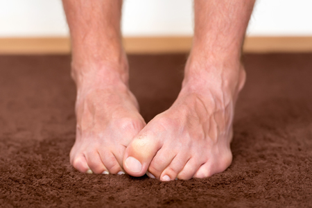 foot fungus: Itchy cold feet resting on the floor. Stock Photo