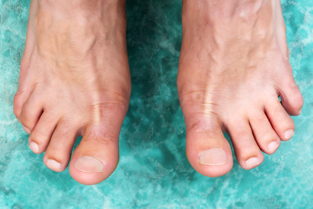 stinky: Clean male toes without any dermatological issues.