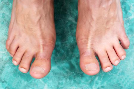 pies masculinos: Limpie los pies masculinos sin ningún tipo de problemas dermatológicos. Foto de archivo