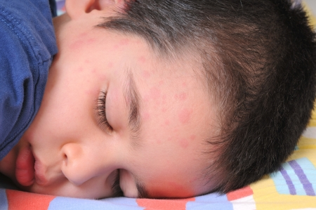 rash: Little cute boy sleeping in his bed suffering severe urticaria, nettle rash