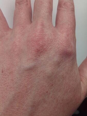 rash and hives on the skin of the back of the female hand, allergic skin reaction, disease of the body's immune system