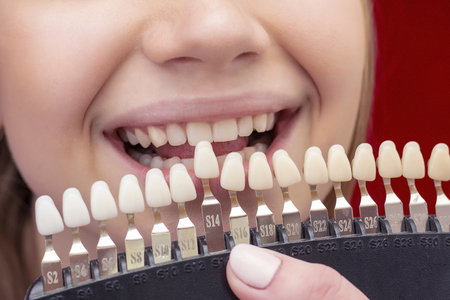the girl on the procedure of teeth whitening with an open mouth, the dentist selects the original color of the teeth on bleaching shade guide