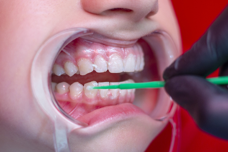 teeth whitening procedure person whiten teeth in mouth expander stomatology