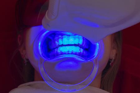 teeth whitening procedure ultraviolet lamp whiten teeth girl mouth extender Stock fotó