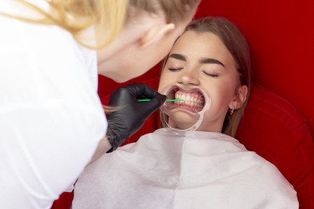 teeth whitening procedure girl reception dentist for teeth whitening. the doctor applies the drug to the patients teeth Stock fotó