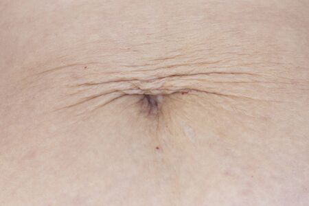 dilated navel after losing weight and pregnancy. hanging skin close-up. stretch marks on the stomach. Stock Photo