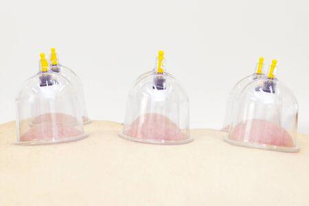 vacuum back massage using special vacuum. Health concept.