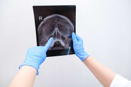 X-ray of the skull in the hand of a female doctor. With copy space. Diagnosis of sinusitis