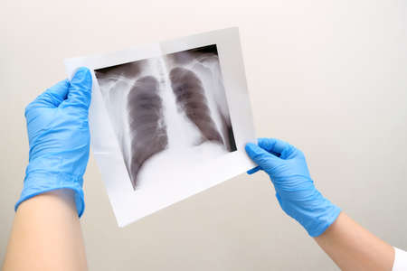 Doctor diagnosing patients health on asthma, lung disease,  virus illness with radiological chest x-ray film for medical healthcare hospital service