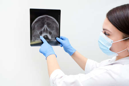 X-ray of the skull in the hand of a female doctor. With copy space. Diagnosis of sinusitis Stock Photo