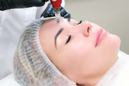 Needle mesotherapy. Cosmetologist performs needle mesotherapy on a womans face. Beautiful woman receiving microneedling rejuvenation treatment. Needle lifting