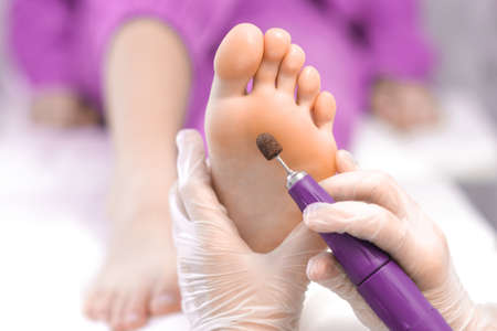 Pedicure. Peeling feet pedicure procedure from callus on foot by hands of podiatrist in white gloves at beauty salon