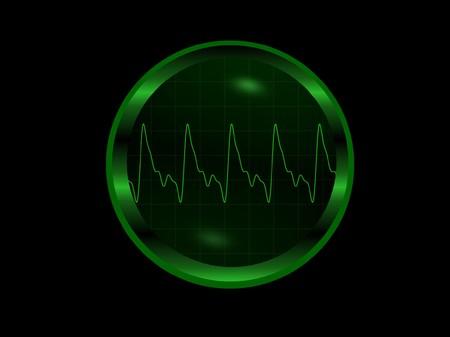 tachycardia: EKG de lectura