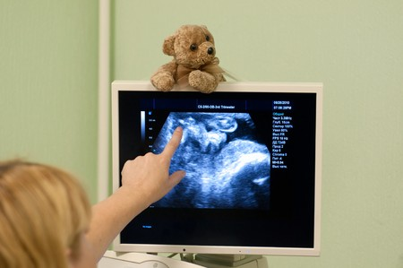 Obstetrician examining pregnant belly by ultrasonic scan.