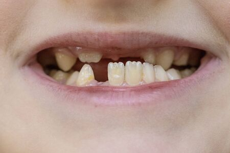Child's mouth close-up, tooth growth and lack thereof. The concept of baby tooth loss in children