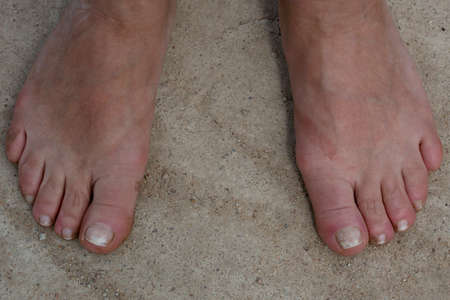 Adult legs without shoes on the concrete floor.