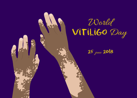 Beautiful hands with marks for poster design for World Vitiligo day Illustration