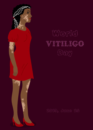 Beautiful girl with marks for poster design for World Vitiligo day. Illustation for print design with spotted vitiligo woman isolated on the bright background.