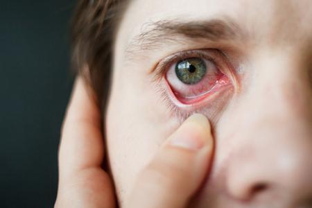 Primer plano de los ojos rojos de los hombres, fatiga, problemas con los vasos sanguíneos