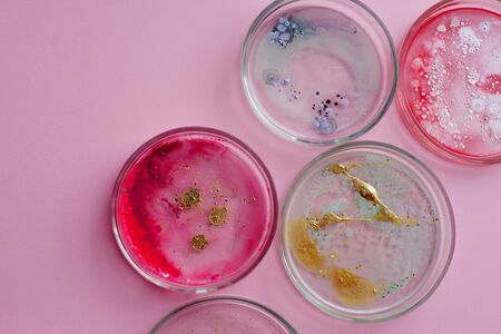 Growth of different bacterial cultures, concept. Bacteriological examination. Harmful and beneficial bacteria, microflora of humans