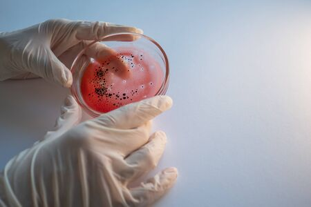 epidemic and the global virus attack concept. lab technician or researcher holds a Petri dish with a sample. Virology and bacteriology