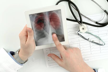 doctor looking at lung  x-ray, Pneumonia picture