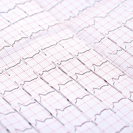 printout: closeup of ECG printout