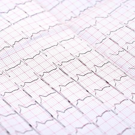 closeup of ECG printout