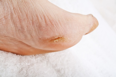 close up of Feet that need a pedicure