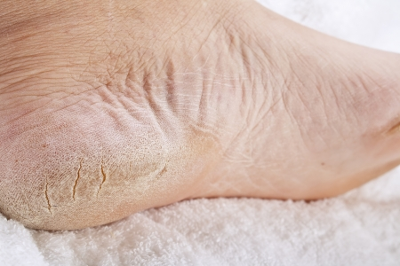 dirty feet: close up of Feet that need a pedicure
