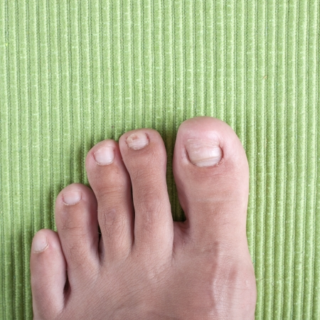 toenail: Badly infected ingrown toenail