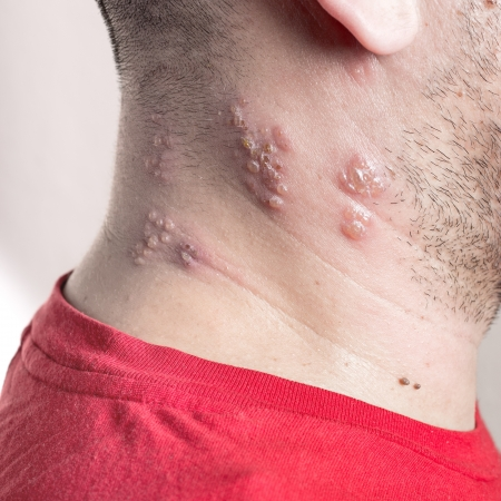 Raised red bumps and blisters caused by the shingles virus