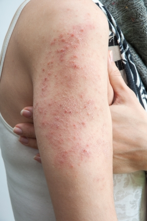 allergic rash dermatitis skin texture of patient