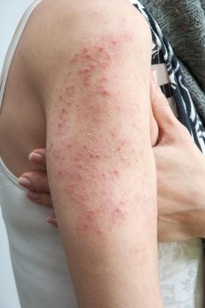 sarpullido: textura de piel de dermatitis al�rgica de erupci�n de paciente  Foto de archivo