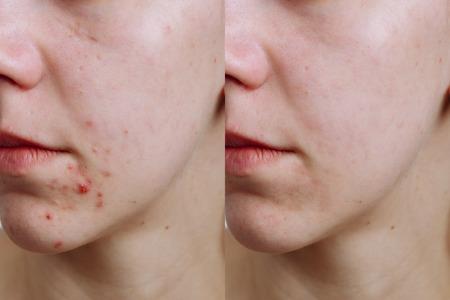 Jeune femme avant et après le traitement de l'acné, gros plan. Concept de soins de la peau
