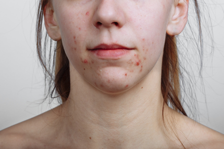 Young women with problematic skin and pimples on her face. Feamle showing her acne. Skincare, beauty and spa concept