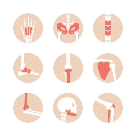 Vector set of human joints with red damaged parts. Disease in bone, knee, leg, pelvis, scapula, skull, elbow, foot and hand illustration. Arthritis and rheumatism icons on white background