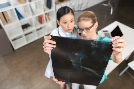 focused doctors looking at x-ray picture together at hospital Banco de Imagens