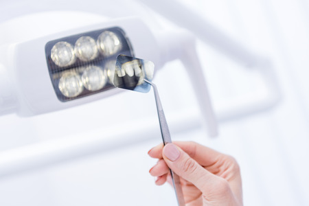 dentist holding xray picture of teeth with forceps against dental lamp