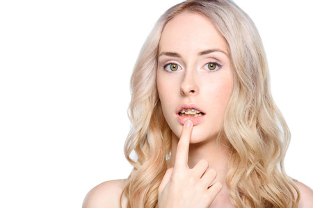 Woman pointing to teeth with braces Stock Photo