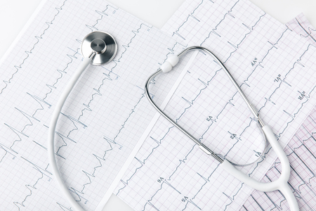 stethoscope laying on paper with cardiogram
