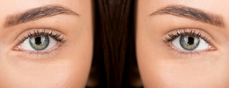 close-up shot of eyes of woman before and after retouch