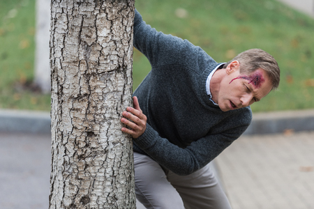 injured mature man with wound on head leaning on tree on the street