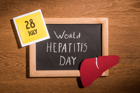 top view of blackboard with lettering world hepatitis day, liver and stick it with lettering 28th july on table