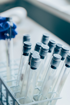 selective focus of flasks and hand of biologist behind in modern laboratory Stock Photo