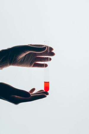 cropped shot of doctor in gloves holding glass test tube with blood isolated on white