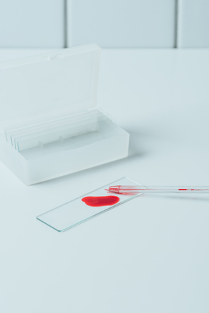 blood sample on glass slide with pipette on white table